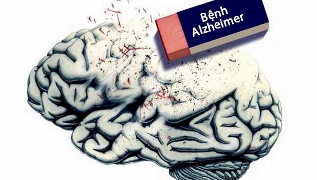 Chưa có phương pháp hữu hiệu để phòng chống và điều trị bệnh Alzheimer